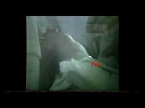 Volare agarico controindicazioni trattamento articolazioni