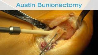 Bunion surgery (Hallux valgus) / surgical technique