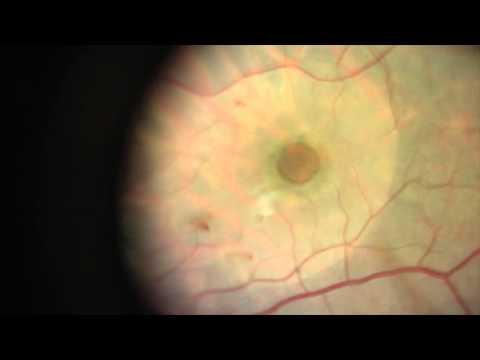 Large Macular Hole Surgery
