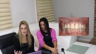 Viernes 05/10/2018 - Preguntas y Repuestas con la Dra. Debbie | Top Dental