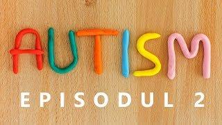 Ep. 2: Pot celulele stem trata autismul? Cauza autismului si care celule stem sunt mai utile.