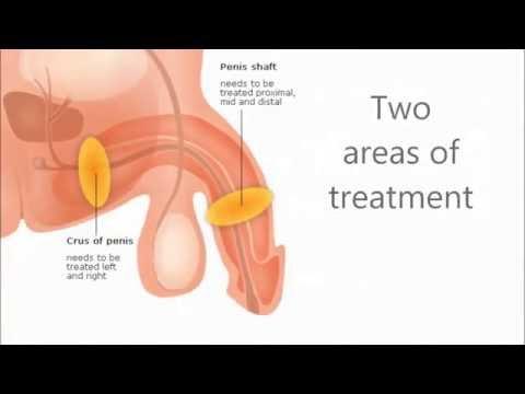 Bauchschmerzen und Diabetes