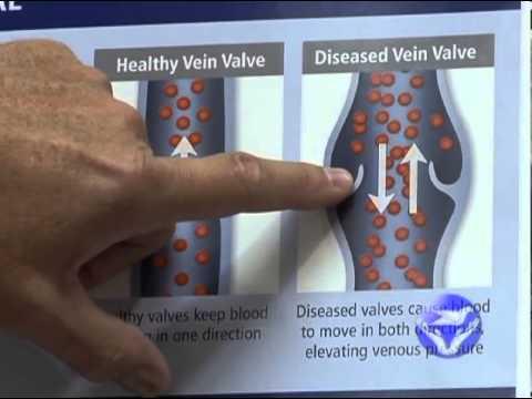 Video Symptoms of Venous Insufficiency