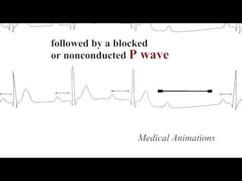 Wie man misst arterielle Hypertonie