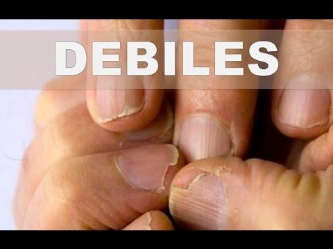 ☞ Remedios caseros para uñas débiles y quebradizas – Como darle vida a las uñas debilitadas