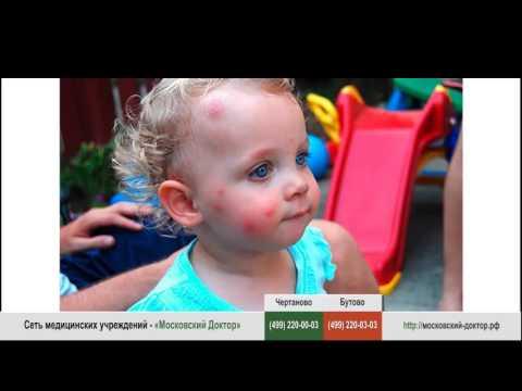 Аллергия на комариные укусы