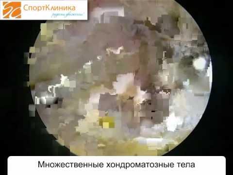 Хондроматоз локтевого сустава - СпортКлиника
