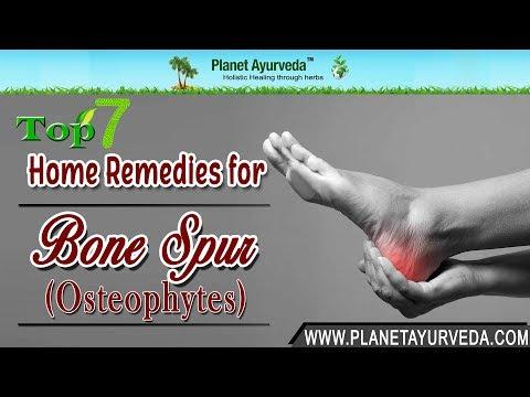 Plexitis Schultergelenk Symptome Behandlung Bewertungen