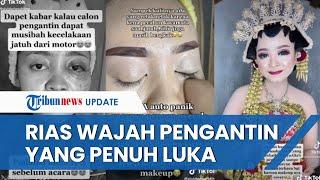 Viral Video MUA Rias Wajah Pengantin Luka-luka karena Kecelakaan, Sempat Takut Mempelai Merasa Sakit
