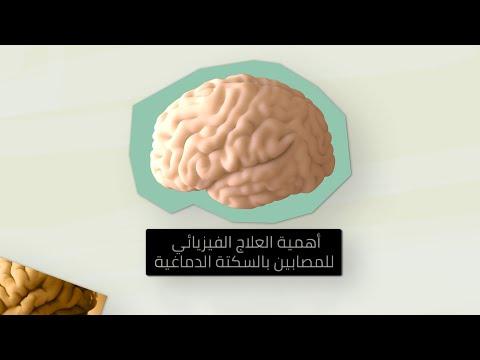 أهمية العلاج الكيميائي للمصابين بالسكتة الدماغية