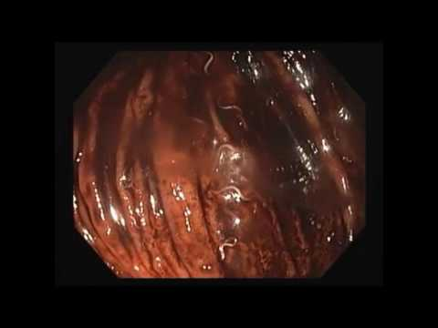 Lumipad parasitiko litrato