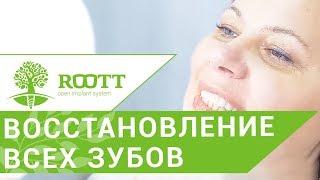 Имплантация всех зубов. 😷 Метод имплантации всех зубов при малом количестве костной ткани.