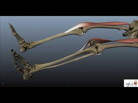 Ортопедия. Ход операции по замене коленного сустава. Доктор Рами Кардош