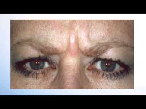 Botox and Dermal Fillers in Dentistry - YouTube
