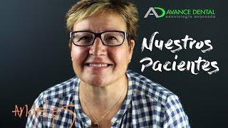 Implantes Dentales - Testimonio de Ángeles - Avance Dental