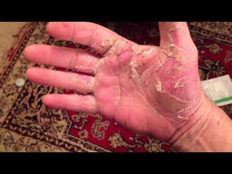 Quella psoriasi o eczema sono più terribili