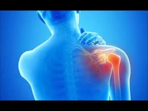 Oltre ad essere trattati per il mal di schiena