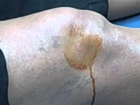 Infiammazione delle articolazioni dei nervi