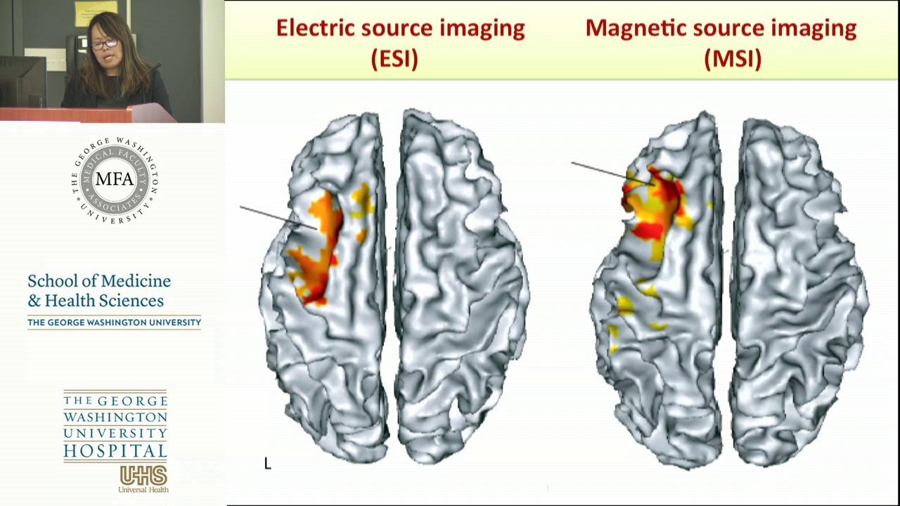 George Washington University Epilepsy Center Grand Rounds