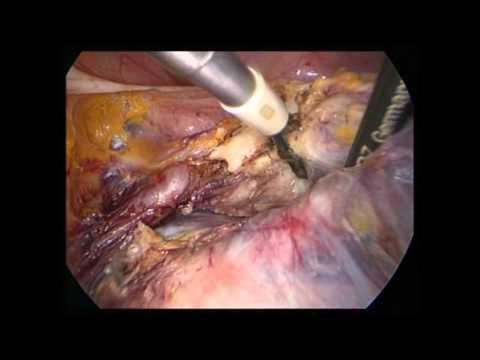 Schwindel von dem, was geschieht in Osteochondrose