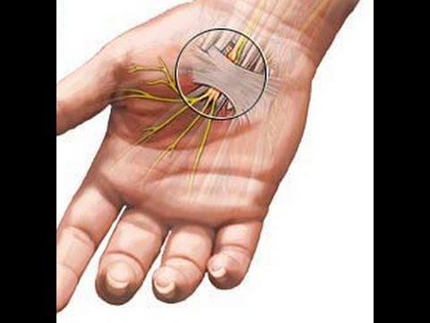 Почему происходит онемение рук и пальцев? Как избавится от онемения рук и ног?