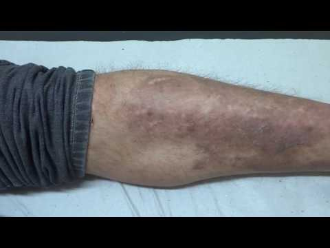 Documentos para receber uma subvenção na dermatite atopic