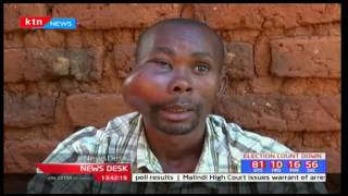 Kitui man pleading for assistance to treat a bizarre growth on his face