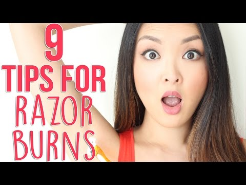 Video HOW TO: Prevent and Get Rid Of Razor Burns!