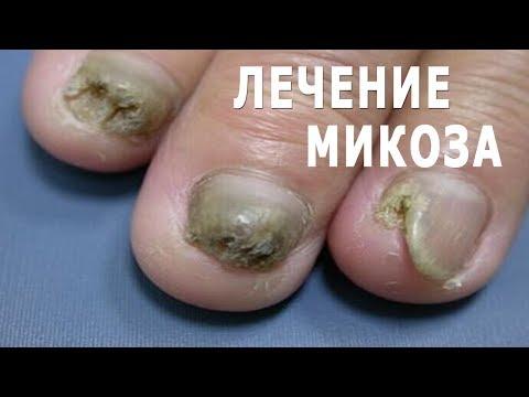 Die nochmalige Behandlung gribka der Nägel