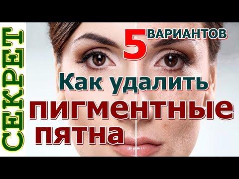 Меланин пигментация кожи