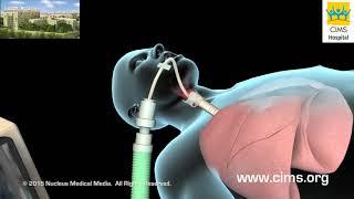 Intubation And Mechanical Ventilation (Hindi) - CIMS Hospital