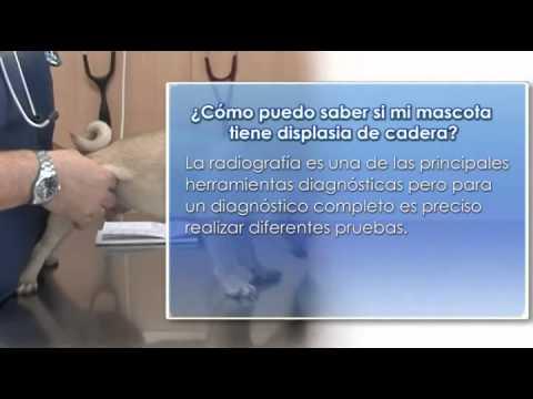 Período de rehabilitación en el cambio de la articulación del hombro