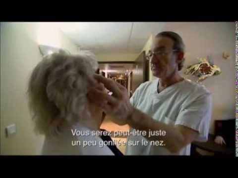 La violation du reflux veineux et les oedèmes sous les yeux