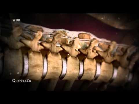 Die Osteochondrose die Warmbäder
