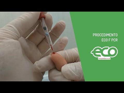 Il video monitorato come fare prostata