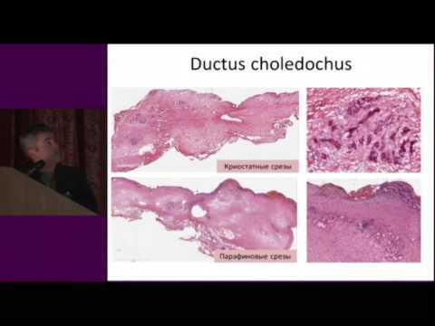 Лечение хронический персистирующий гепатит