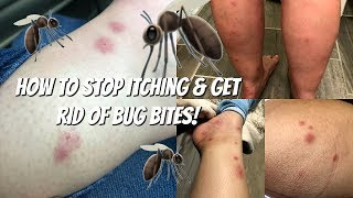 How to STOP ITCHING!!!! & GET RID of Bug Bites