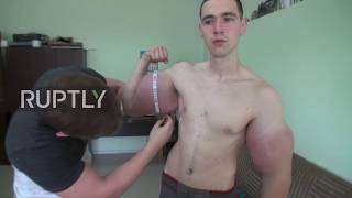 Oh puh-lease, Hercules: 21-year-old Russian grows FOOT WIDE biceps after drug injections