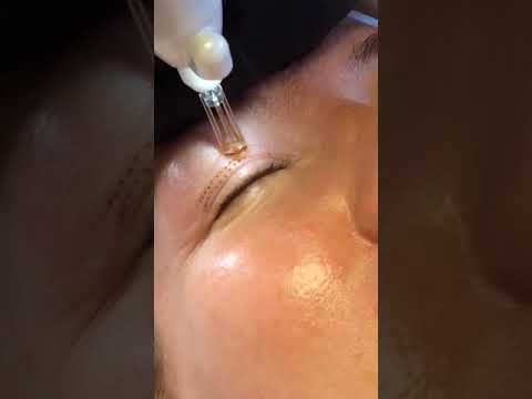 Plasma Beamwave Non-surgical Eyelid Lift and Eyebag reduction