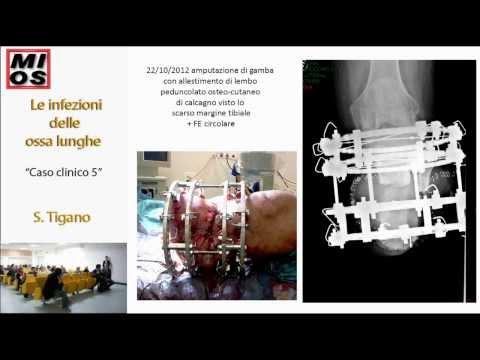 Meniskopatiya ginocchio trattamento sintomi articolari