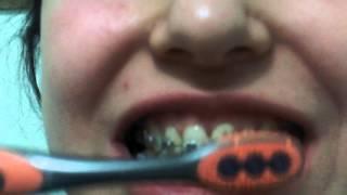 diş telleri ve diş fırçalama/ braces and tooth brushing