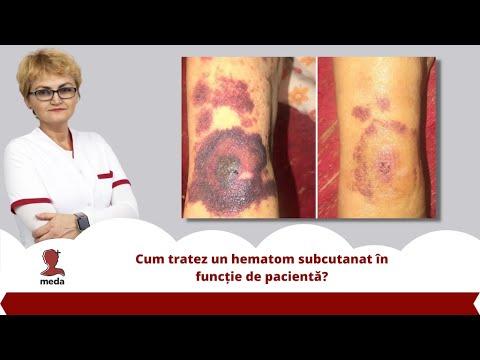 Medicamente pentru bolile articulațiilor mâinilor
