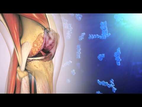 Inflamația articulației unghiei