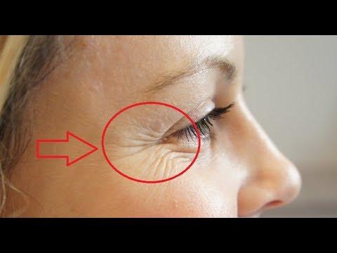 Глубокие морщины на лице как избавиться