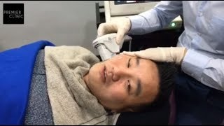 HOW NON-SURGICAL LIFTING (ULTHERAPY) IS DONE?