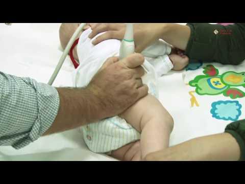 Artroza postoperatorie a articulației șoldului