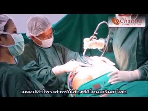 ศัลยกรรมหัวใจและหลอดเลือดในมอสโกและมอสโกภูมิภาค