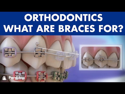 Braces - Elements of the orthodontics and its role ©