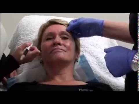 Takip sa mukha sa eyelids pagkaraan ng 45