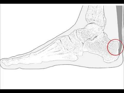 Jak usunąć guzek na nodze niedaleko opinie na kciuki